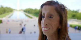 Memiliki Wajah Buruk Rupa Wanita Ini Jadi Inspirasi Dunia
