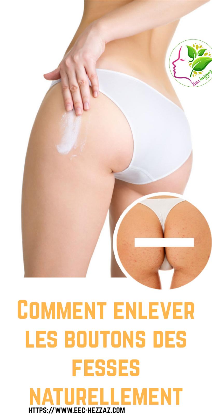 Comment enlever les boutons des fesses naturellement