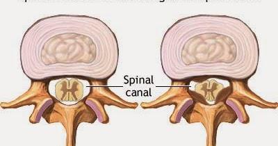 The Back Dr's Blog- Better Posture Better Sleep & Pain ...
