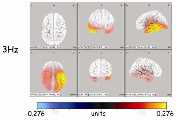 図:3Hzバイノウラルビートが左脳を刺激