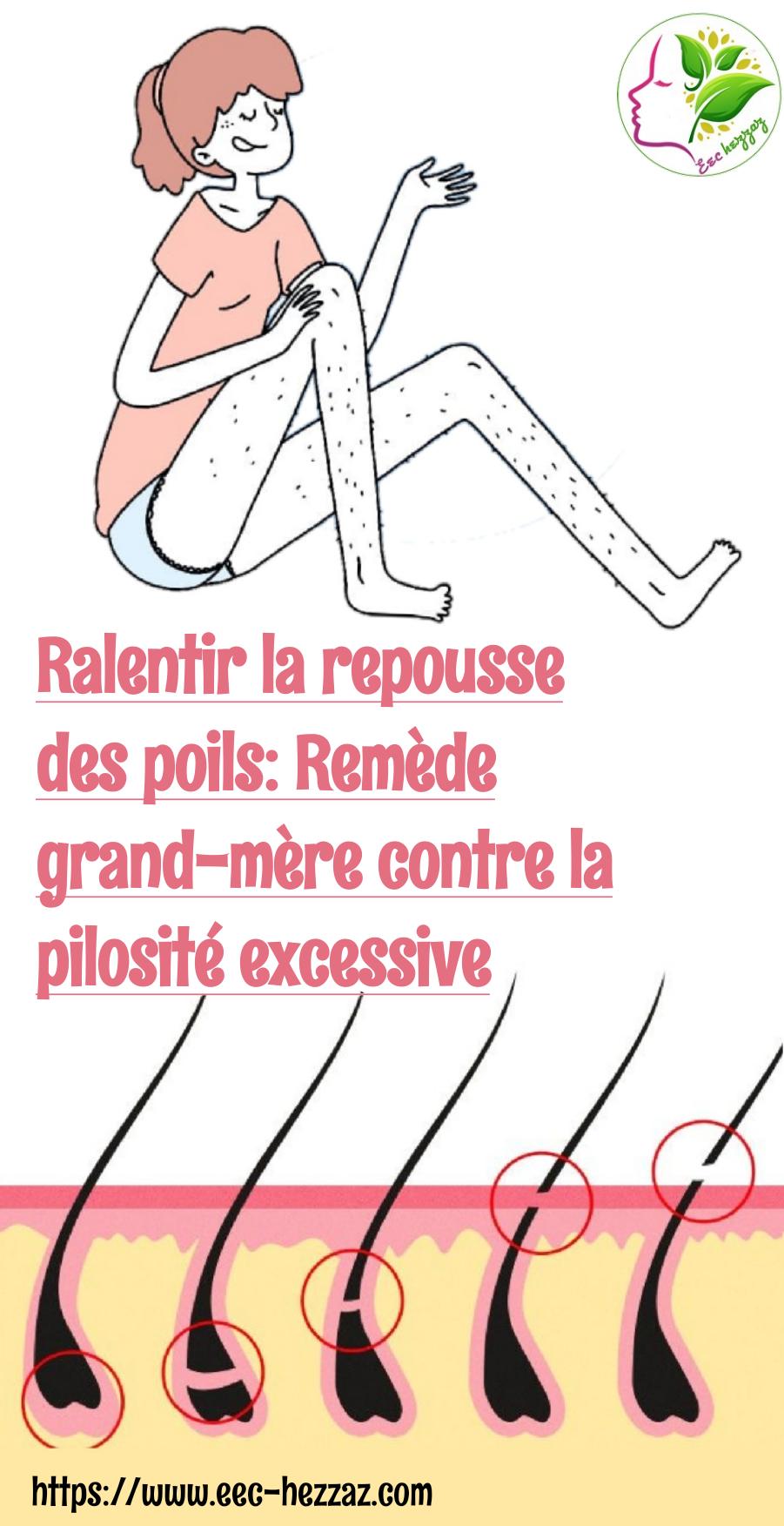 Ralentir la repousse des poils: Remède grand-mère contre la pilosité excessive