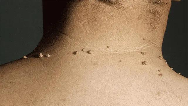 الزوائد الجلدية