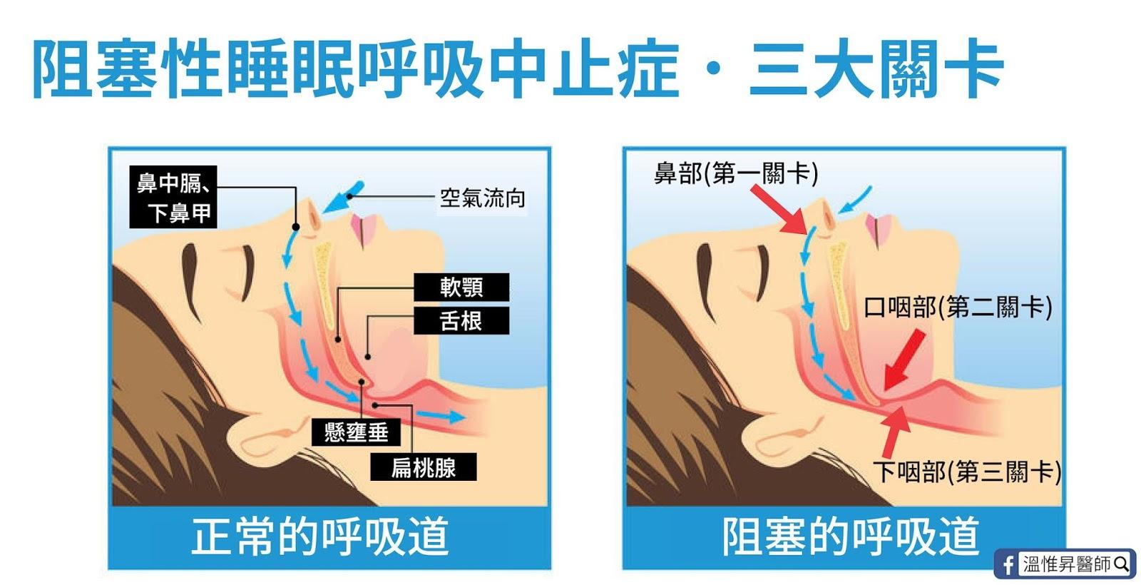 溫惟昇醫師 耳鼻喉頭頸外科: 打鼾與睡眠呼吸中止癥的精準治療-多層次睡眠手術
