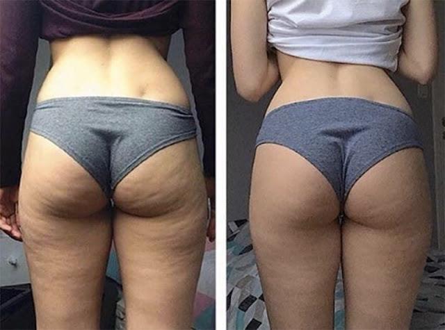 """Évitez ces habitudes qui augmentent la cellulite pour lutter contre """"peau d'orange"""""""