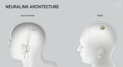 Upgrades of Design in Neuralink
