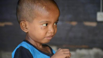 Bocah Asal Tapsel Terpaksa Makan Sabun Cuci