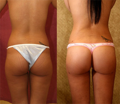 brazilian butt-lift results after surgery photos