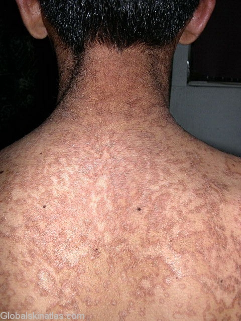Skin papillomatosis treatment, Confluent and reticulated papillomatosis dermnet. Most viewed
