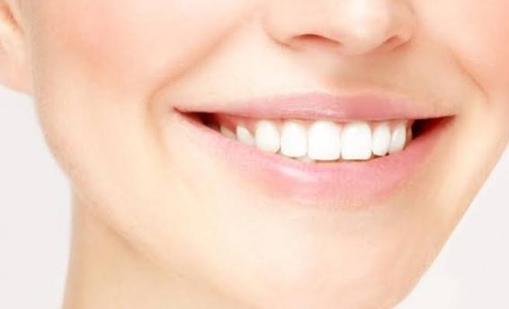 Dokter Spesialis Prostodonsia di Jakarta Pusat: Sama-Sama Bisa Memutihkan Gigi, Inilah Perbedaan Antara Veener dan Bleaching