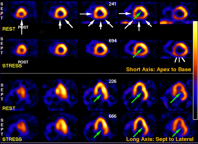 Nuclear Cardiology images