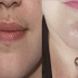 Facial Hair Growth (Chin and Upper Lip) and Other Common Symptoms of PCOS That Usually Ignored