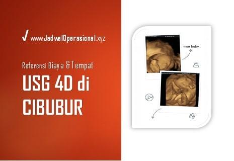 USG 4D di Cibubur
