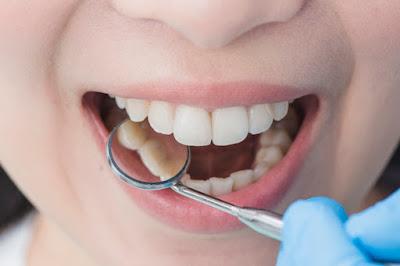 Diş Hekimi Seçimi