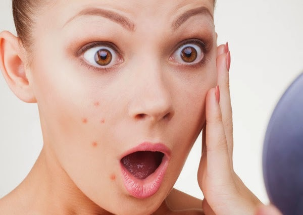 Acne - Types, Causes And Treatments