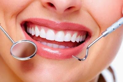 Cara Cepat Dan Alami Menghilangkan Noda Hitam Pada Gigi