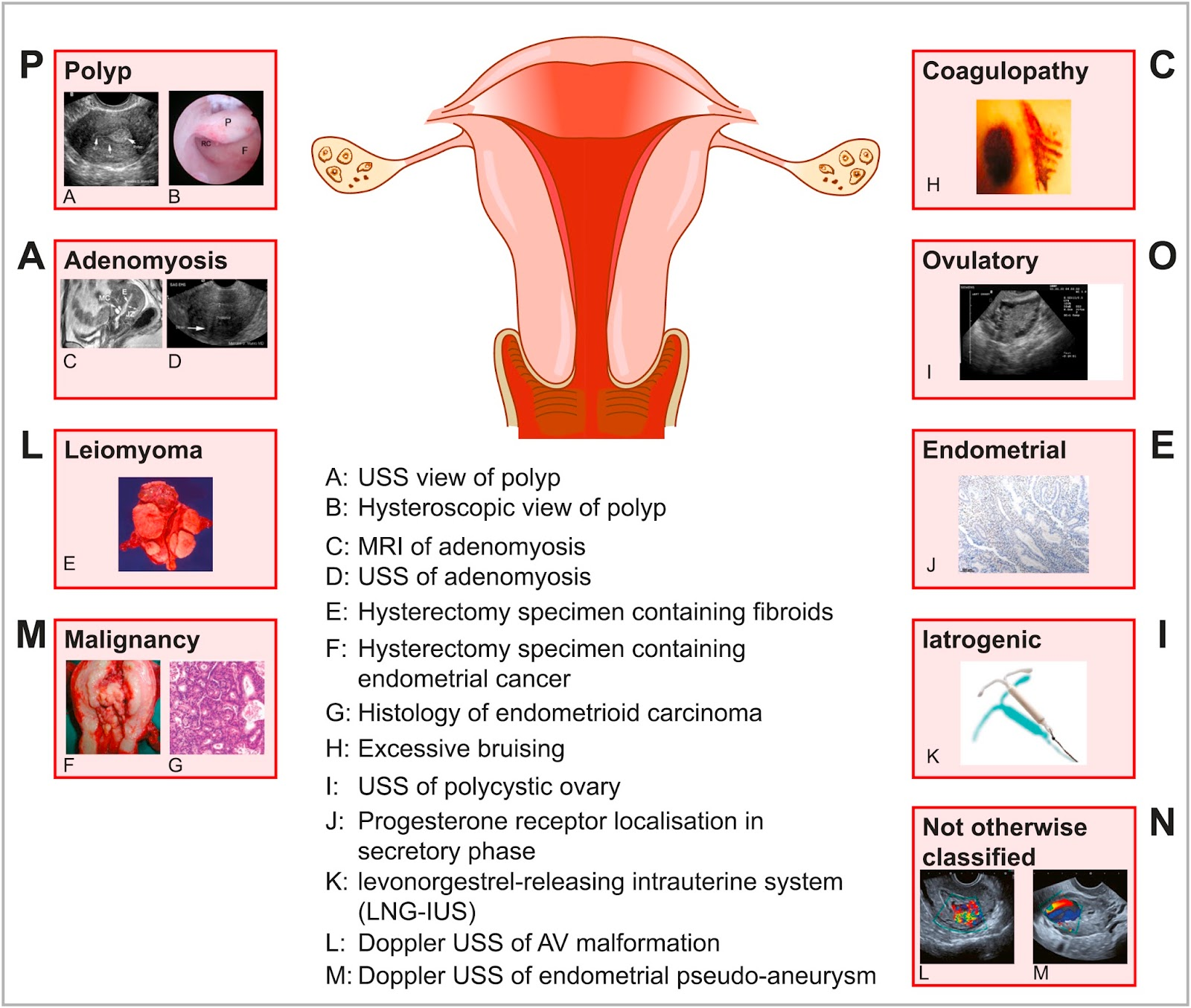 Ob/Gyn Updated : Abnormal Uterine Bleeding (AUB)