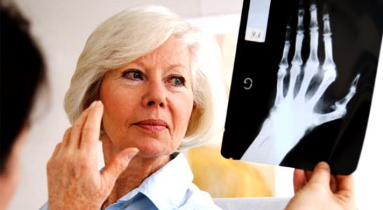 Rheumatoid Arthritis: Know the Signs