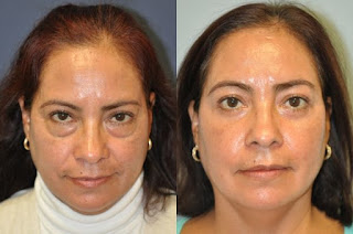 Eyelid Surgery In Goa | Medical Tourism In Goa