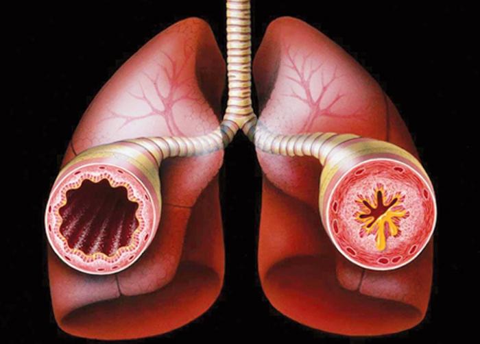 my best Health: Nursing diagnosis for asthma