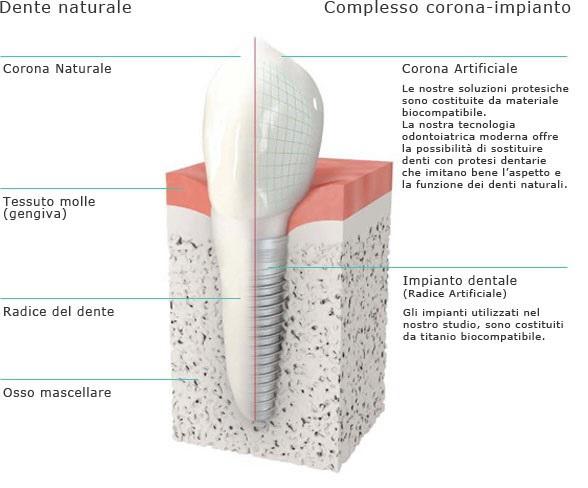 Impianto dentale a partire da 350 euro - materiali  certificati svizzeri e tedeschi