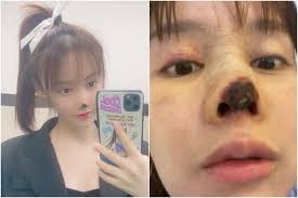 Chinese actress Gao Liu shares pictures of her decaying nose as she warns against the dangers of plastic surgery