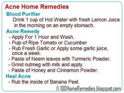 Acne and pimples home remedies