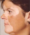 bolezn_vitiligo