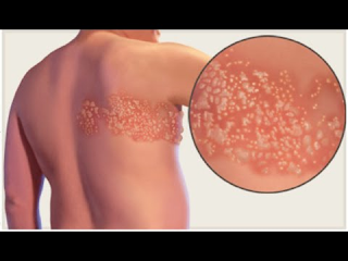 Shingles occurs in people who have previously had chickenpox