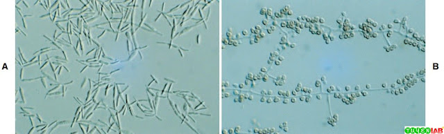 Yeast phase of Sporothrix schenckii showing cigar-shaped yeast cells typical of the species