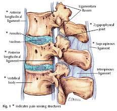 Spinal Stenosis Treatment Natural Remedies