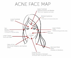 6 Steps How to Treating Acne with Lifestyle Changes-p2