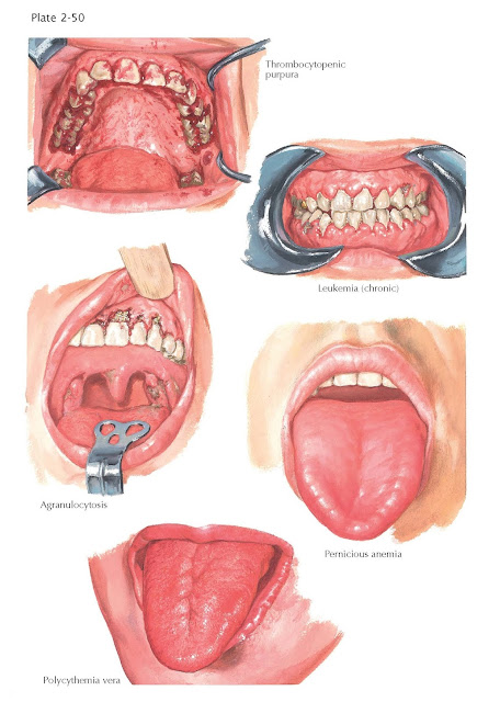 Oral Manifestations in Hematologic Diseases