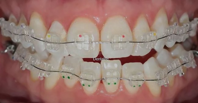 Brackets de Zafiro en Consultorio Dental en Veracruz Puerto