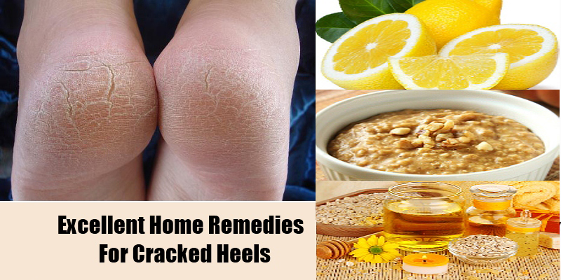 fast remedy for cracked feet