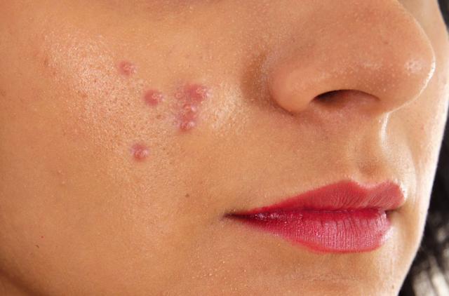 Tips merawat wajah berjerawat
