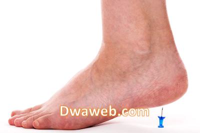 مسمار القدم الأسباب وكيفية العلاج