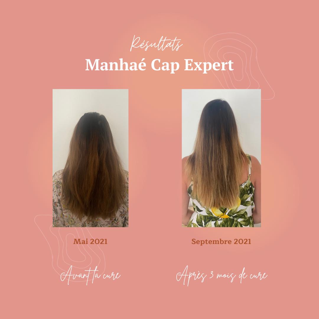 Manhae Cap expert Avant après