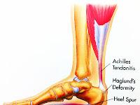 Foot Tendon Diagram
