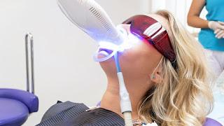 تبييض الأسنان: المؤشرات والفعالية والسعر