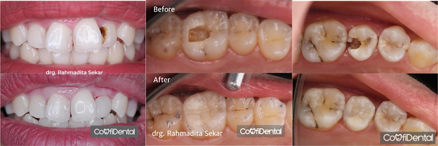 Restorative and aesthetic dentistry