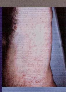 Dermatitis de contacto debido a la fibra de vidrio