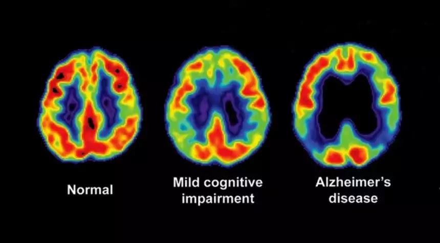 Alzheimers diseased brain