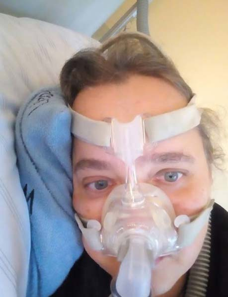 Majority of times the patients are recommended masks in order to keep the air passages open by means of the air pressure, which gets into the nostrils. However, lots of people are not able to bear with the masks and turn down to utilize these masks.