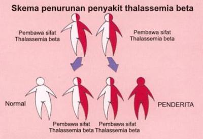 Thalasemia Penyebab, Gejala dan Pengobatan Terlengkap