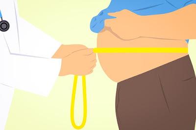 Obesitas (Kegemukan)  - Gejala, Penyebab, dan Pengobatan