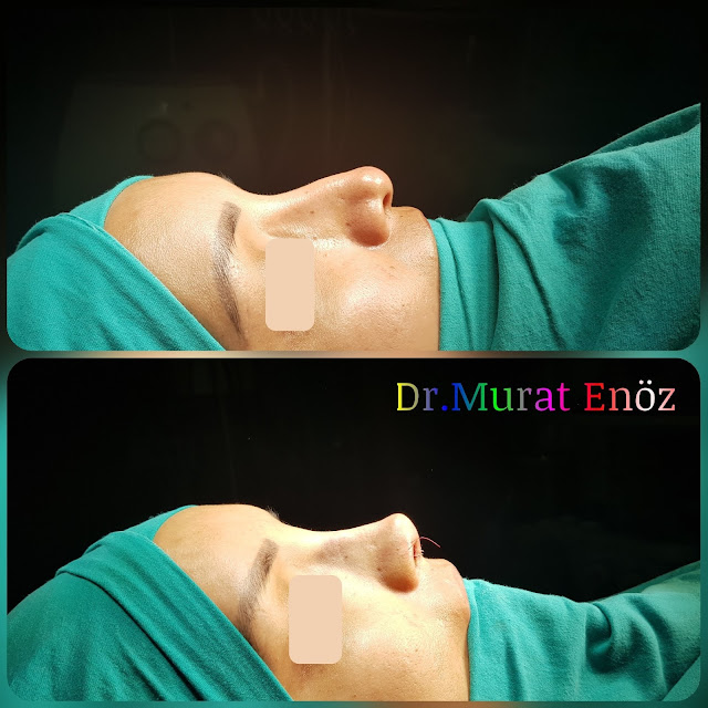 Thick Skinned Secondary Revision Rhinoplasty With Micromotor System
