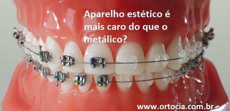 aparelho ortodontico estetico