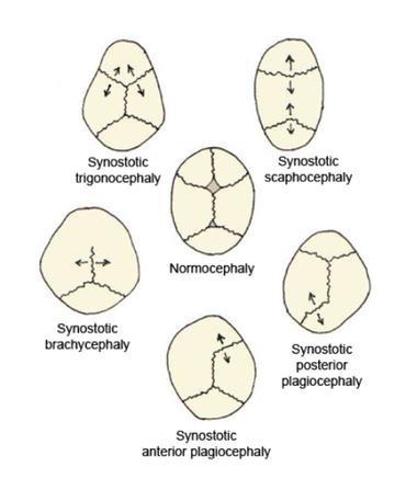 kawasaki mnemonic   pediatrics mnemonics