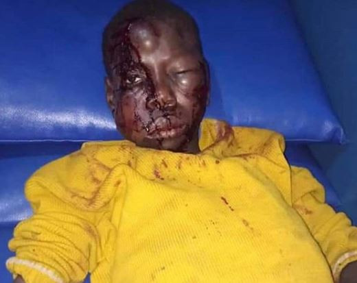 14-year-old boy heartlessly beaten by his uncle for stealing  N3000 from their neighbour