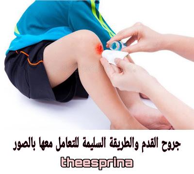 جروح القدم- الإسعافات الأولية لجروح القدم مع الشرح بالصور